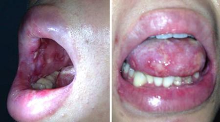 Triệu chứng của bệnh lậu ở miệng là gì?