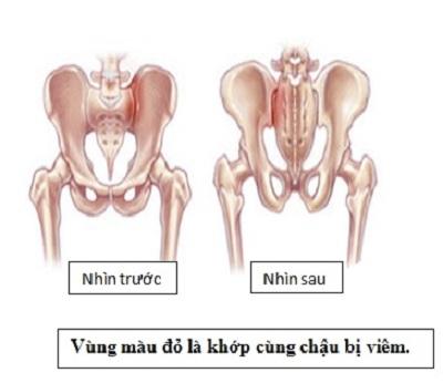 bieu-hien-benh-viem-vung-chau-man-tinh