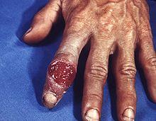 vết loét hạ cam từ bệnh giang mai