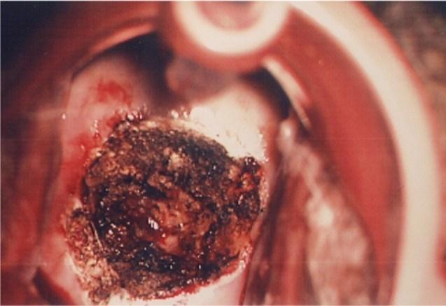 Có nên đốt Viêm Lộ tuyến cổ tử cung không?