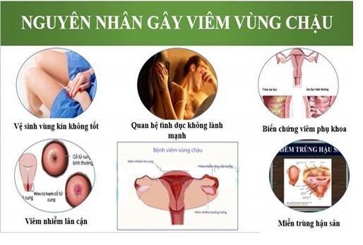 Nguyên nhân gây viêm vùng chậu