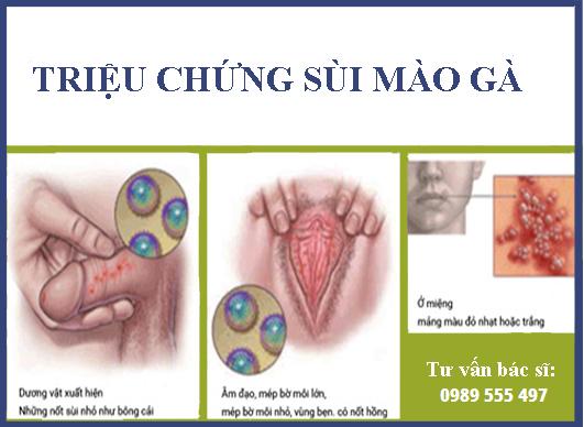 Trieu Chung Sui Mao Ga