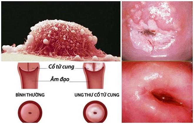 U xơ cổ tử cung là bệnh gì?