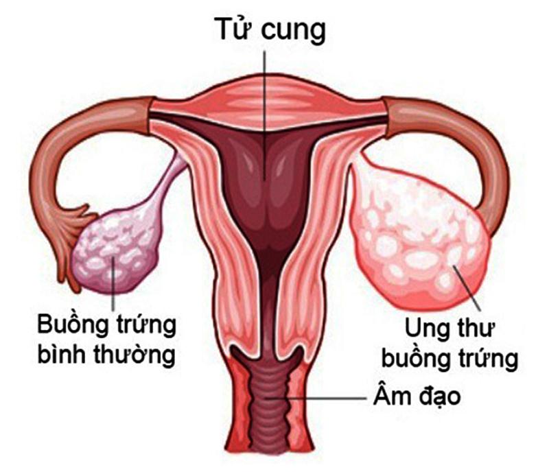 Cách chữa viêm buồng trứng