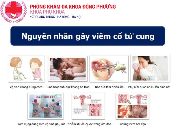 Nguyên nhân gây bệnh viêm cổ tử cung