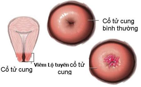 Các giai đoạn phát triển của bệnh viêm lộ tuyến cổ tử cung