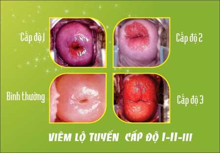 Nguyên nhân gây bệnh viêm lộ tuyến cổ tử cung