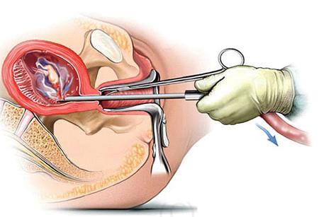 Phá thai bằng phương pháp nong gắp thai có đau không?