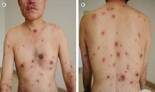 Biểu hiện của bệnh giang mai ở nam giới
