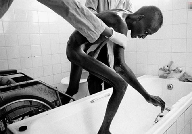 Tác hại đáng sợ của căn bệnh thế kỉ HIV/AIDS