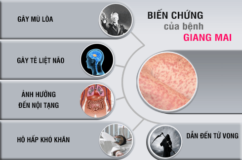 Tac Hai Benh Giang Mai