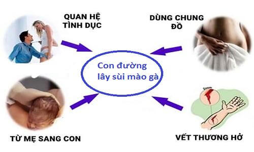 Sui Mao Ga Lay Qua Duong Nao