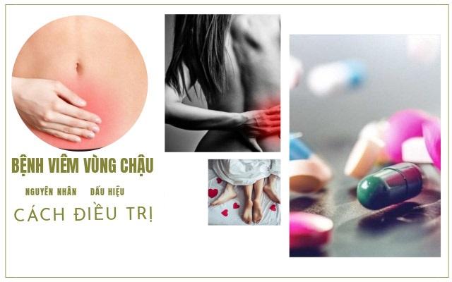 Viem Vung Chau