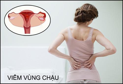 Viem Vung Chau (1)
