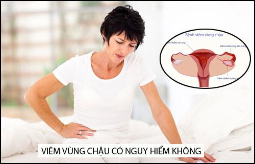 Viem Vung Chau Co Nguy Hiem Khong (1)