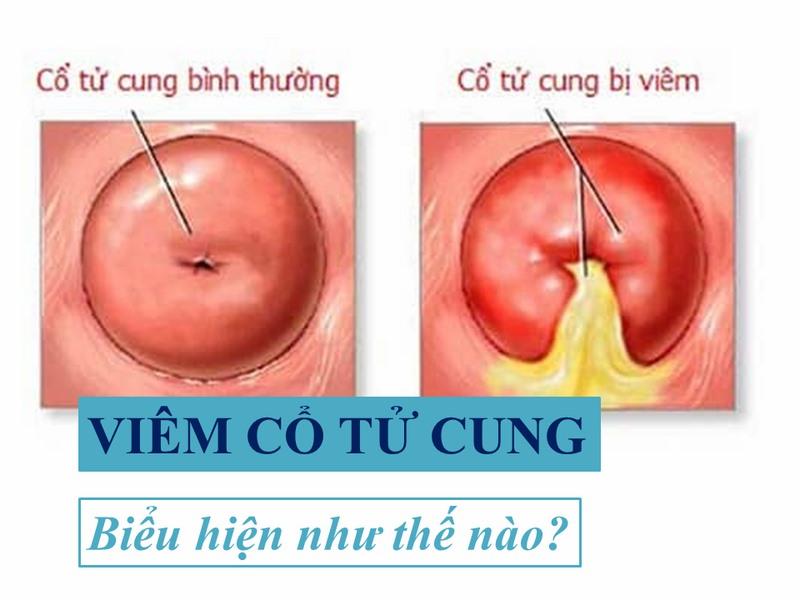 Bieu Hien Cua Viem Co Tu Cung