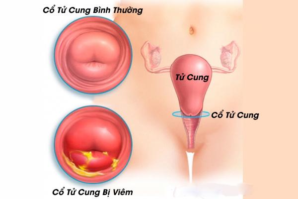 Benh Viem Co Tu Cung Duoc Bieu Hien La Kinh Khong Deu Thang Co Thang Khong