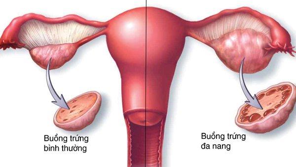 Buong Trung Da Nang Gay Kinh Nguyet Chi Co 2 Lan Trong Nam