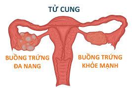 Buong Trung Da Nang