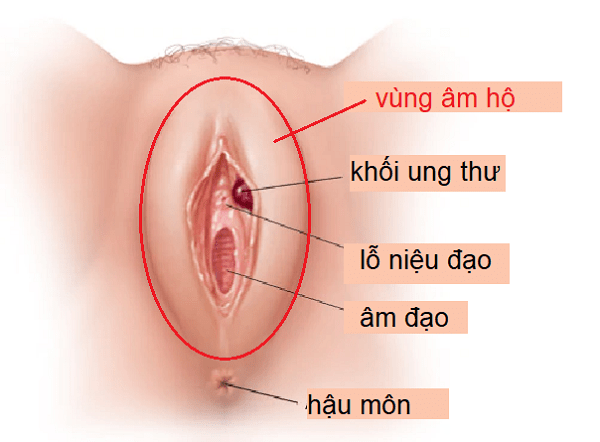 Ung Thu Am Ho Do Virus Hpv Gay Ra