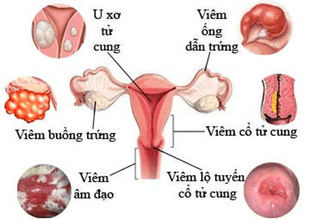 Viem Nhiem Bo Phan Sinh San Gay Kinh Mau Den