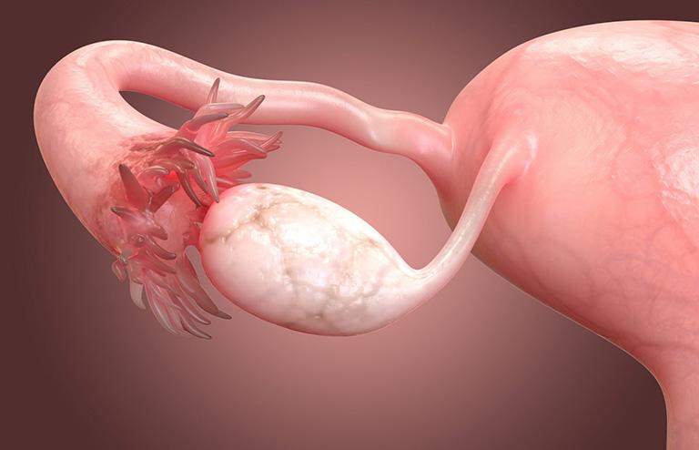 Nguyên nhân gây ra bệnh viêm buồng trứng ở nữ giới là gì ?